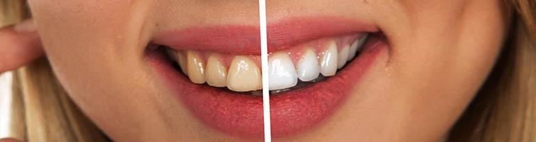 Dents blanches, blanchiment pour garder un sourire éclatant